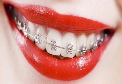Украшение зуба