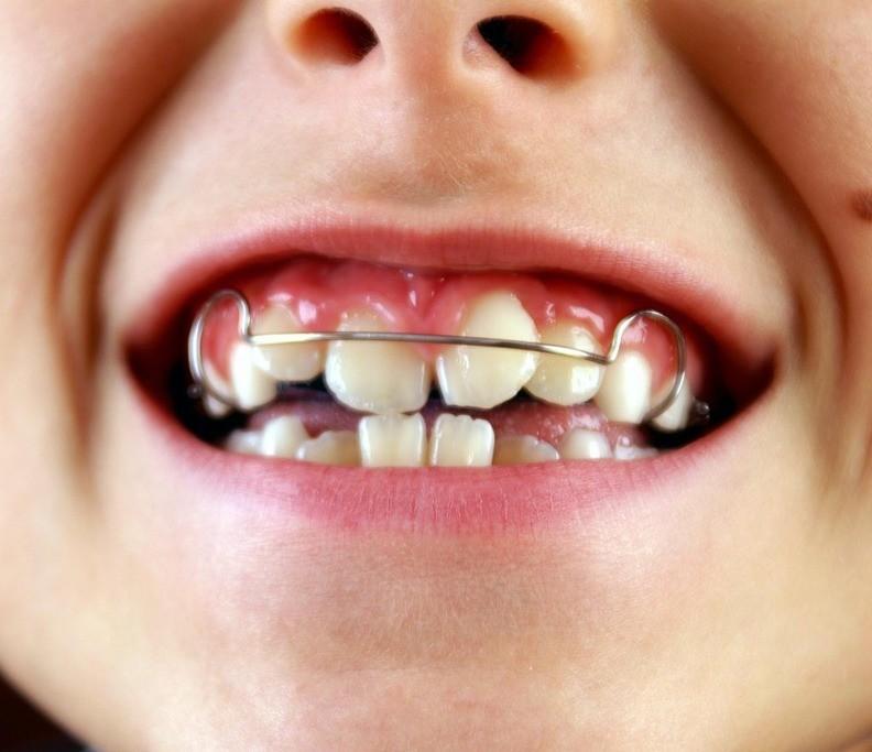 Пластинка на скученных зубах