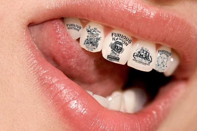Виды украшений зубов