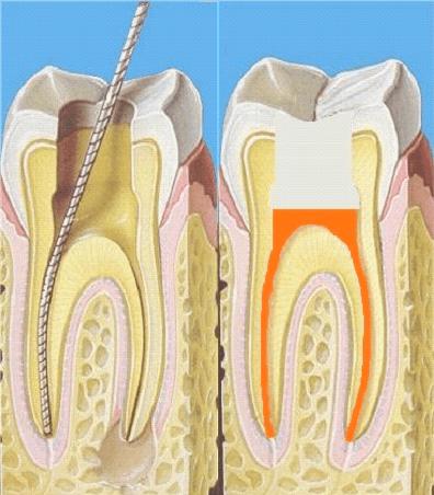 Экстирпация пульпы зуба, методы удаления пульпы зуба