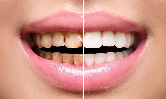 laminirovanie zubov