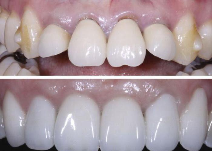 До и После сепарации зубов
