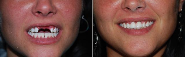 До и после постановки нейлоновых протезов