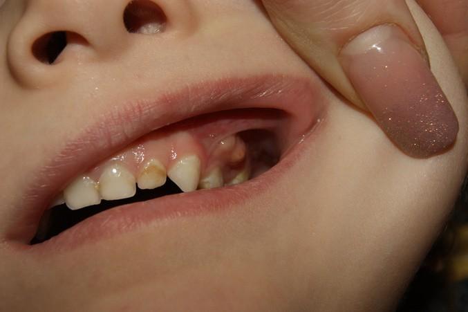 Лечение свища на десне у ребенка