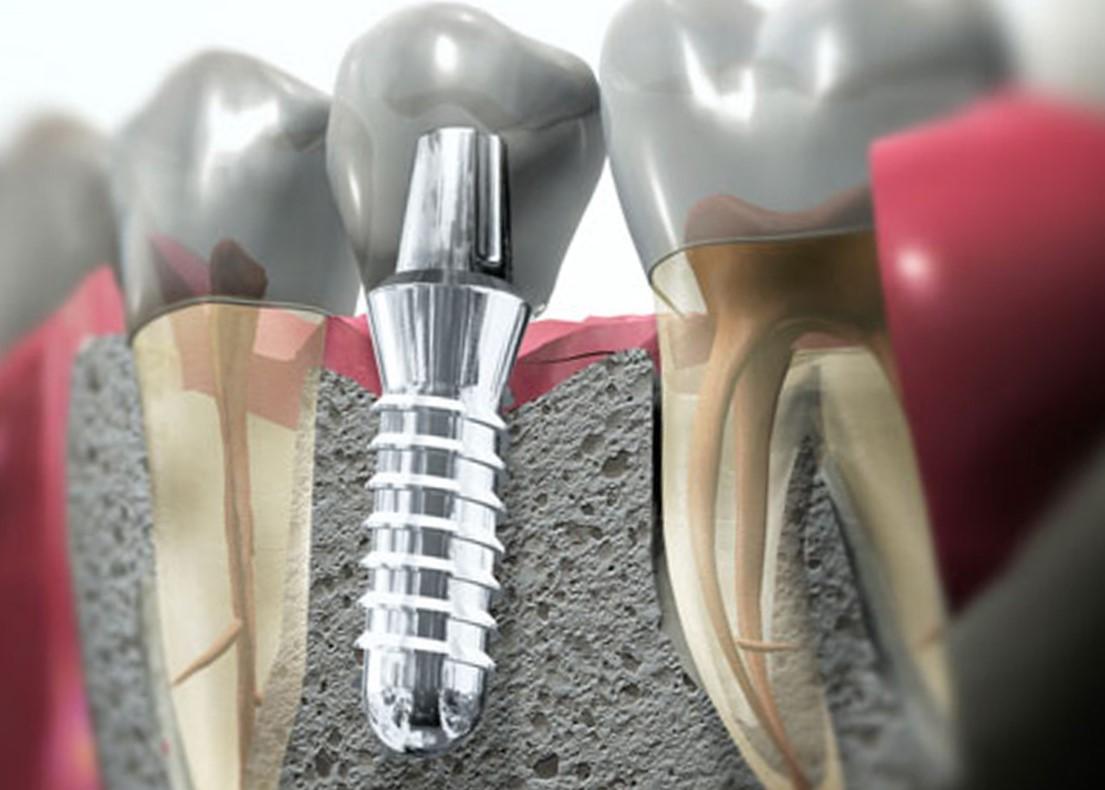 Стоматологический имплантат